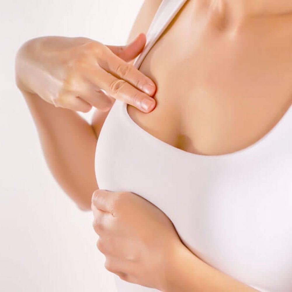 breast-hypertrophy